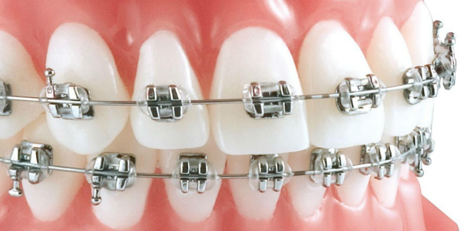 de plus en plus d adultes font recours l orthodontie le journal de l 39 co. Black Bedroom Furniture Sets. Home Design Ideas